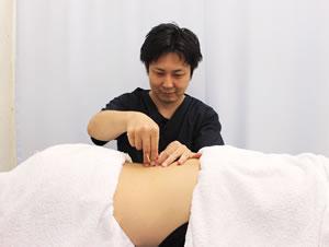 フロンティア整骨院・鍼灸院グループの鍼灸治療の様子